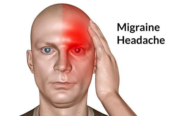 Những thực phẩm không tốt đối với người bị đau nửa đầu 1