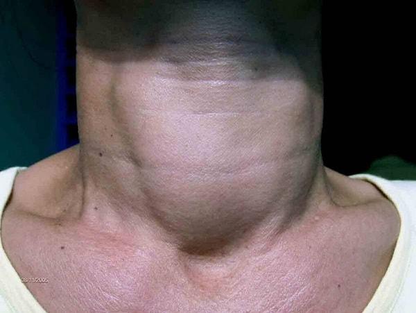 biểu hiện của bệnh Basedow 2