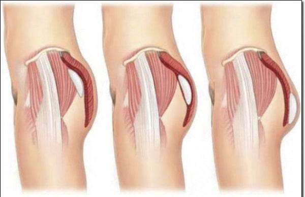 Nguyên nhân, cách điều trị và phòng tránh bệnh teo cơ mông 1