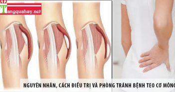Nguyên nhân, cách điều trị và phòng tránh bệnh teo cơ mông